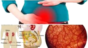 急性膀胱炎.png
