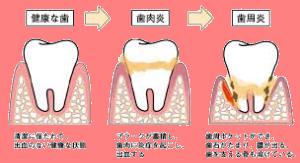 歯周病.png