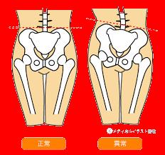 骨盤のゆがみ改善.png